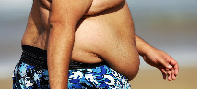 obesity myths and facts